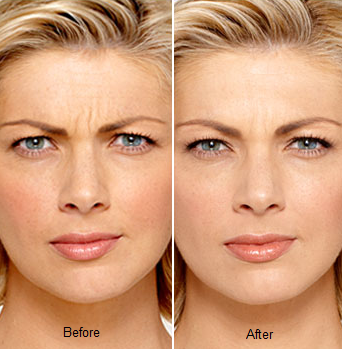 Botox treatment Midland