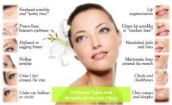 Different Types and Benefits of Dermal Fillers