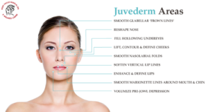 Things to Know Before You Go for Juvederm Treatment