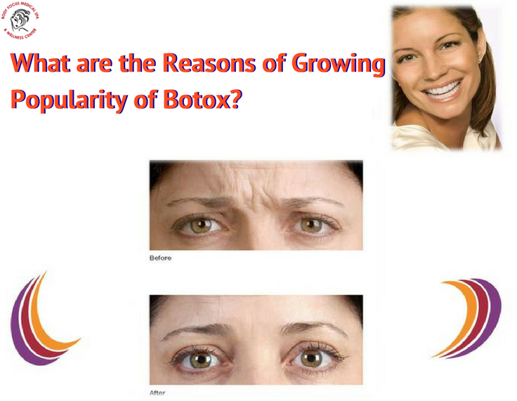 What are the Reasons of Growing Popularity of Botox?