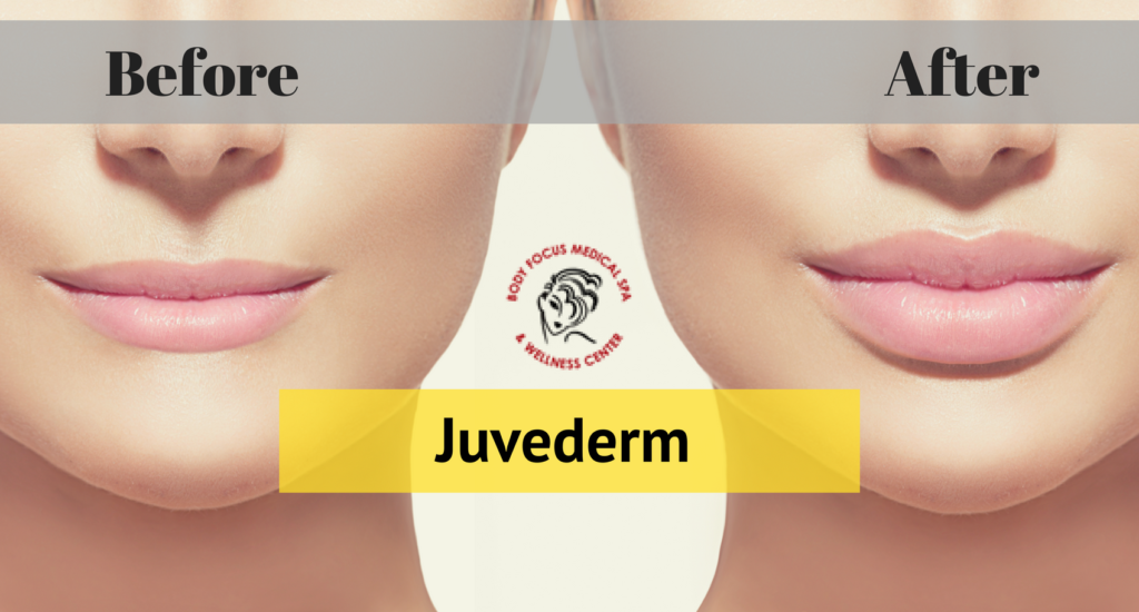 Why is Juvederm Filler Better Than Many Cosmetic Procedures?