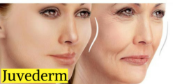 Juvederm Injectable Fillers to Lift Wrinkle Face